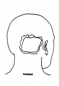 JFK Head Wound